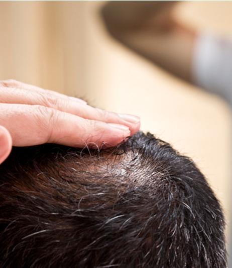 La caída del pelo en hombres