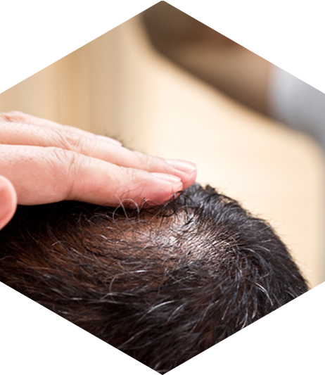 Preguntas sobre causas de caída de cabello